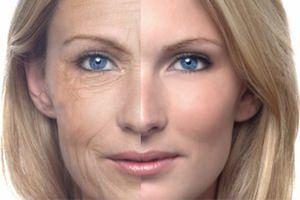 Красивая кожа без морщин