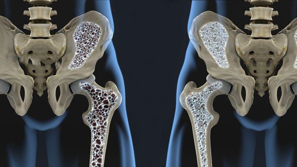 Факторы риска остеопении