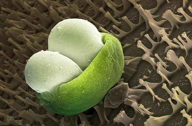 клетка сосновой пыльцы