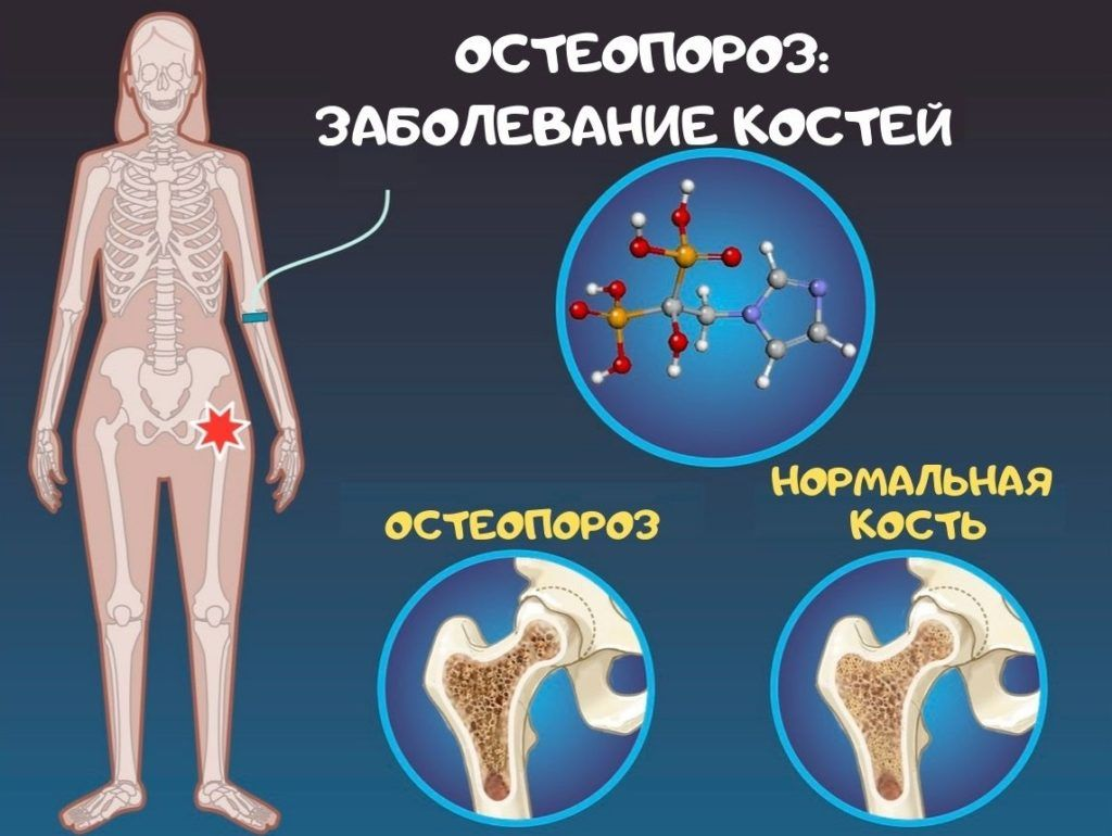 Что такое остеопороз? - Как предотвратить!