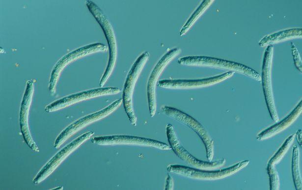 8 паразитов и бактерий, которые могут скрываться в вашей еде