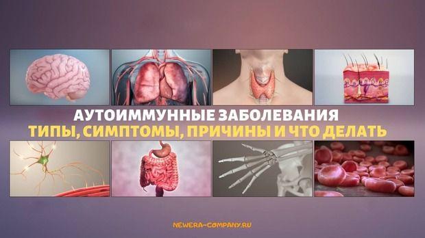 Аутоиммунные заболевания: типы, симптомы, причины и многое другое