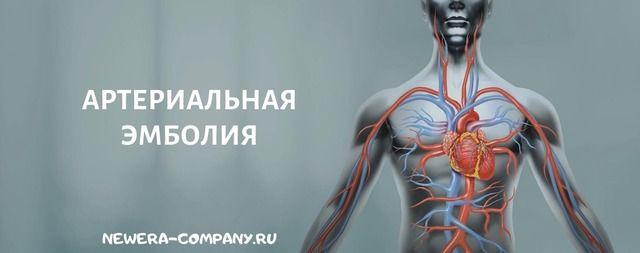 Артериальная эмболия