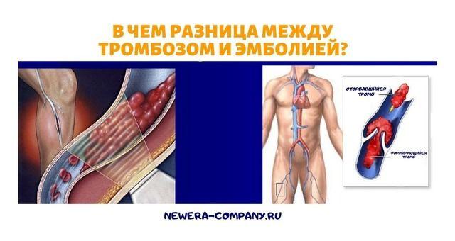 В чем разница между тромбозом и эмболией?