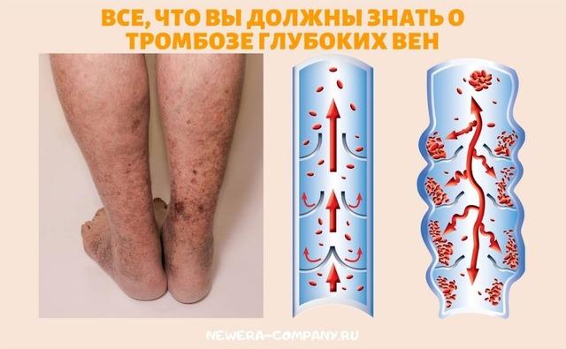 Все, что вы должны знать о тромбозе глубоких вен (ТГВ)